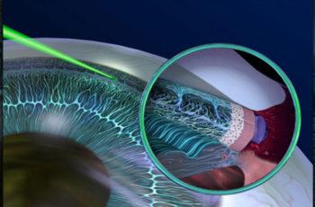 Νέας γενιάς laser κατά του γλαυκώματος