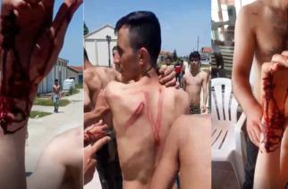 ΒΙΝΤΕΟ-ΣΟΚ: Λαθρομετανάστες που πέρασαν στον Έβρο, καταγγέλουν άγρια κακοποίηση από Βούλγαρους αστυνομικούς